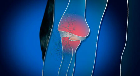 Изображение - Лечение суставов в саках lechenie-sustavov